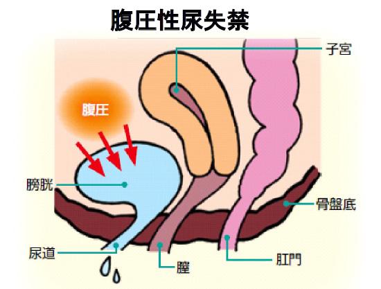 腹圧性尿失禁