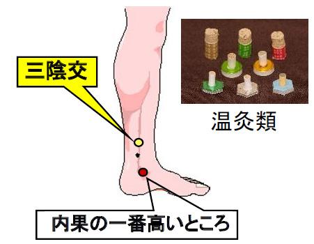 腹圧性尿失禁のツボ